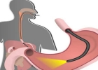 أعراض الإصابة بسرطان الجهاز الهضمى