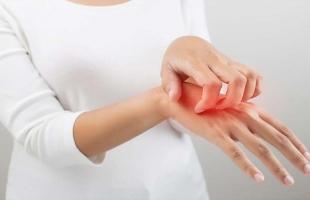 12 طريقة للوقاية من إكزيما اليدين