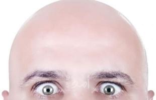نصائح لعلاج الصلع وتساقط الشعر لدى الرجال
