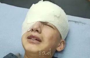 الخليل: طفل يفقد عينه برصاص قوات الاحتلال