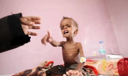 منظمة أممية: أكثر من 16 مليون يمني يعانون انعدام الأمن الغذائي